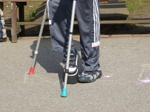A lower part of a disabled body with crutch, SSDI Cases